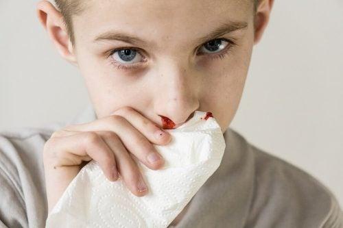 Næseblod hos børn: Årsager og behandling
