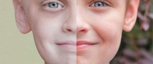 meget bleg hud kan være et tegn på leukæmi