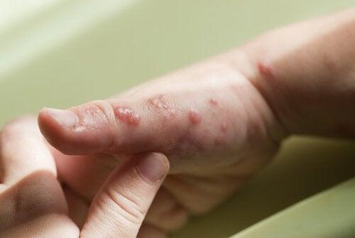 Herpes på hånden hos nyfødt