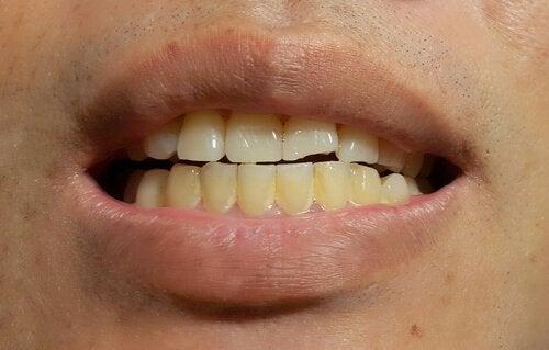 Fremkomsten af plamager på permanente tænder
