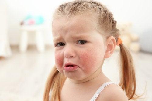 Lille pige med allergi