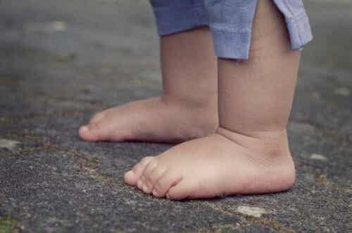 Achondroplasi hos børn: Årsager og karakteristika