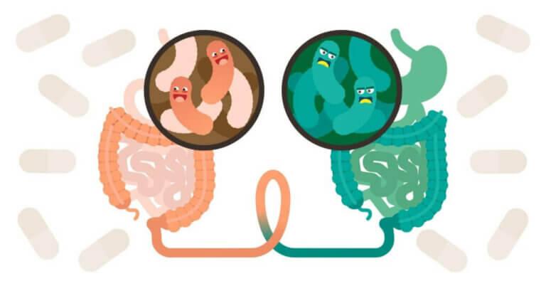 Hvad er en fækal transplantation?