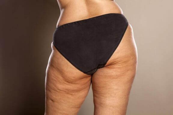 Ved du hvordan man kan bekæmpe cellulitis?