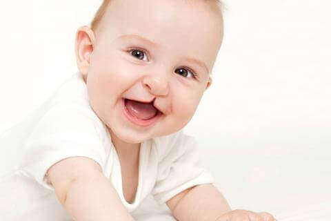 Baby med læbe-ganespalte