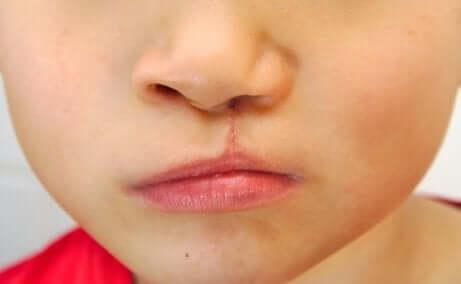 Barn med kraniofaciale anomalier