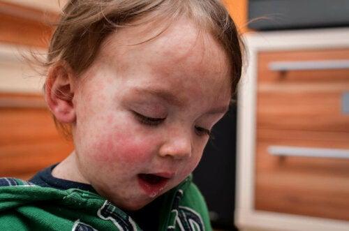 lille barn med udslæt