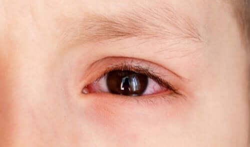 Årsager til røde øjne hos børn