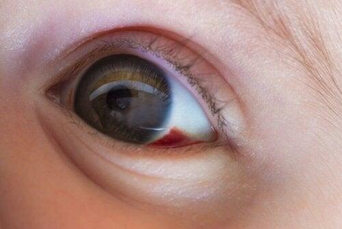 barn med blodsprængning i øjet