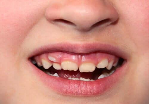 Skæve tænder hos børn: Hvad skal jeg gøre?